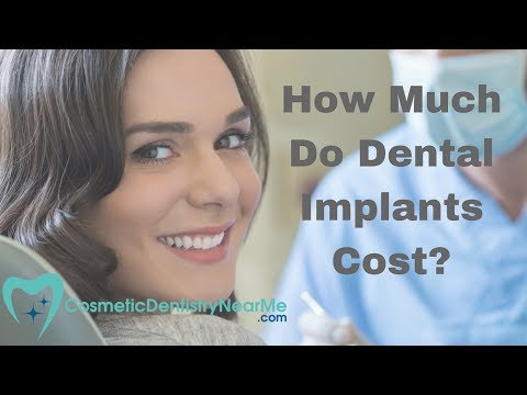 How Much Do Dental Implants Cost?