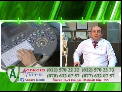 Diz ağrıları - Dr Zülfüqar Yusifov