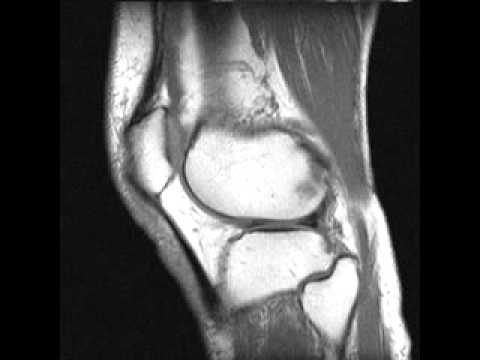 2011 12 13 Knee MRI Ser 3 Ser 1