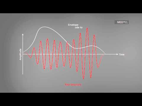 The Envelope and Fine Structure of Sound | MED-EL