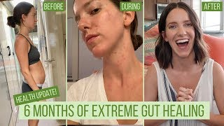 6 Months of Extreme GUT HEALING: What I did | Health Update | What's Next