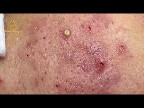 Treatment Of Pustules And Inflammatory Acne (84) | Loan Nguyen