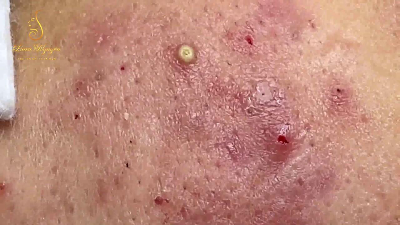 Pustular Skin » How to Prevent And Treat Pustular Skin