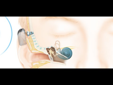 How the Cochlear™ Baha® Connect System Works