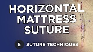 Horizontal Mattress / Figure of 8 / Half Buried - Suture Techniques