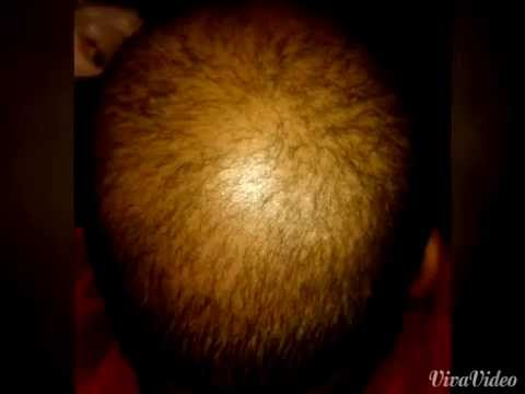 Natural Hair Growth Remedy Youtube
