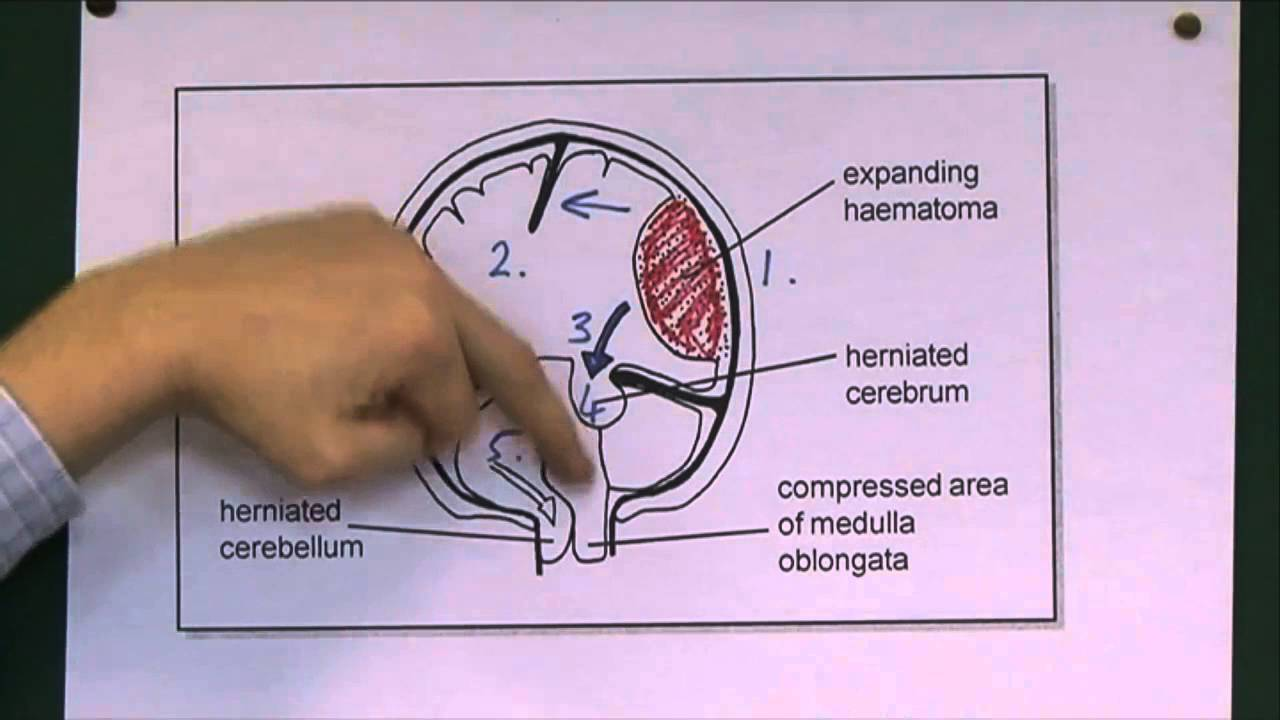 Tentorial herniation - YouTube