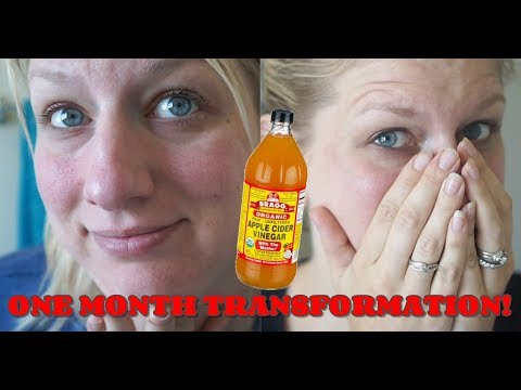 Acne Rosacea One Month Transformation From Apple Cider Vineg