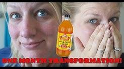 hqdefault - Apple Cider Vinegar Rosacea Acne