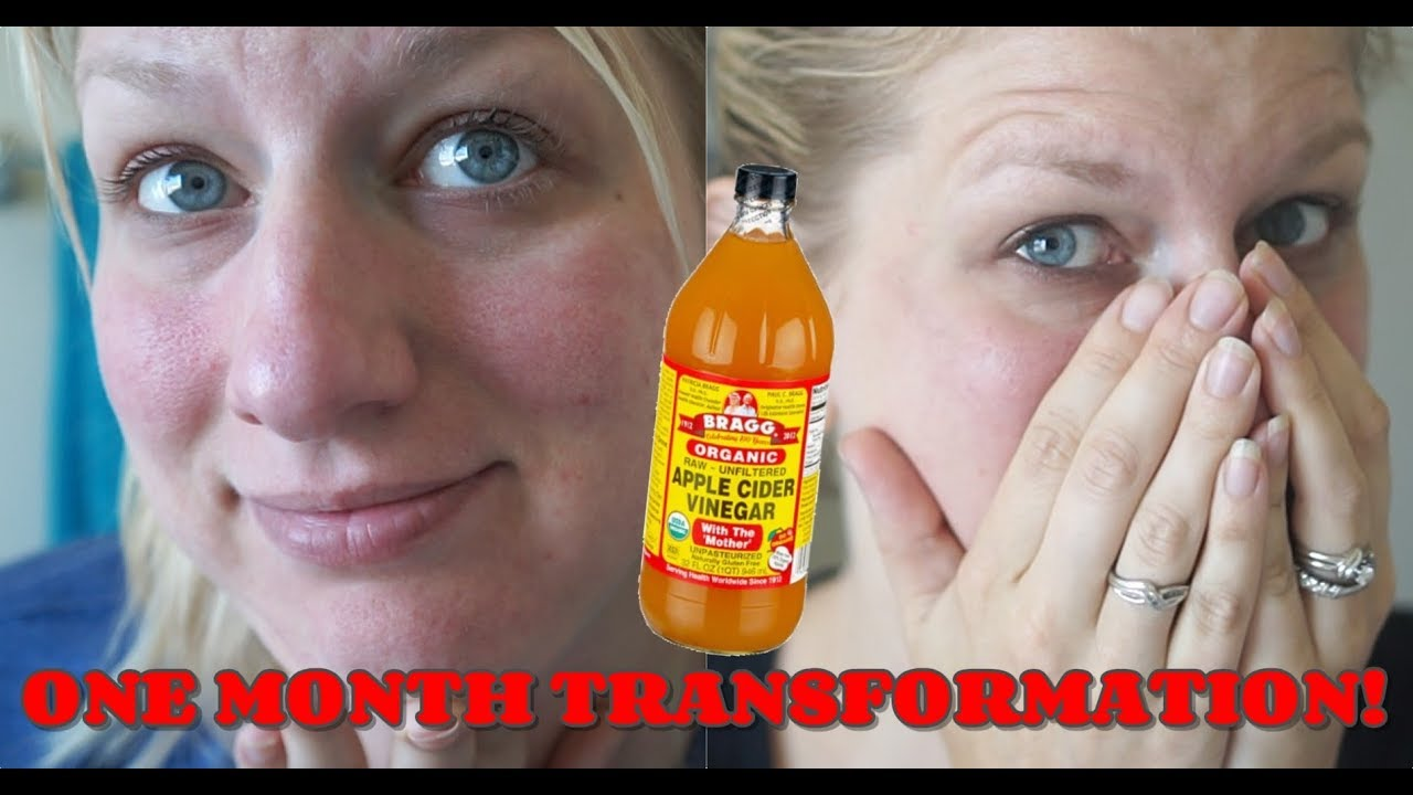 Acne Rosacea One Month Transformation From Apple Cider