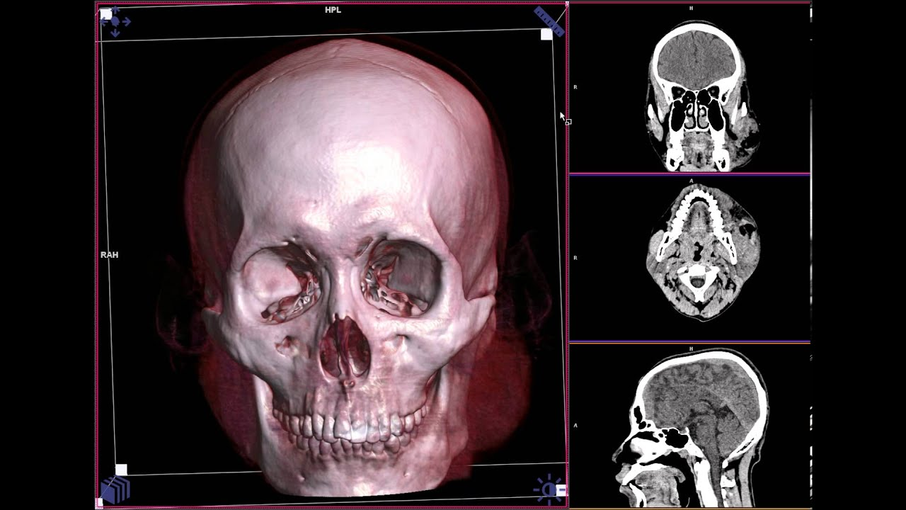 HEAD CT SCAN BONE FACE - YouTube