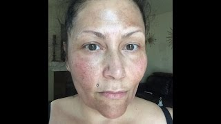 my first tca 25 chemical facial peel day one
