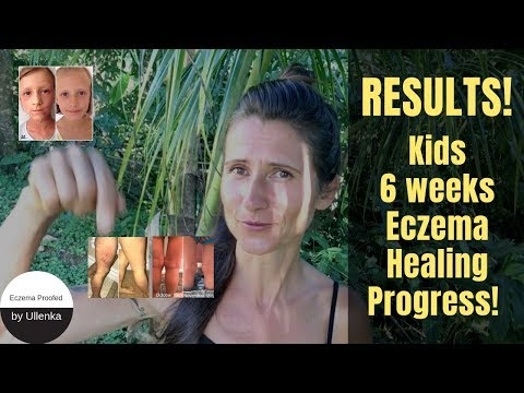 GREAT RESULTS !!! – 6 weeks KIDS eczema healing PROGRESS with pictures! *Eczema Proofed Channel