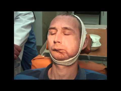 Кандидоз полости рта симптомы болезни, профилактика и