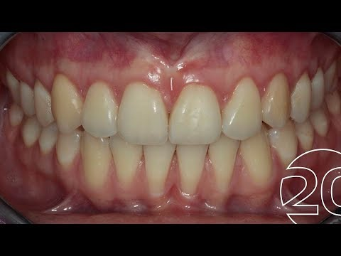 Nachher zahnfleischtransplantation vorher Bloggerin: Fotos