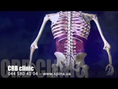 что это остеопороза