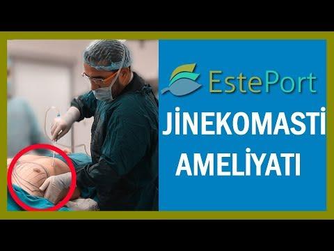 Jinekomasti Ameliyatı