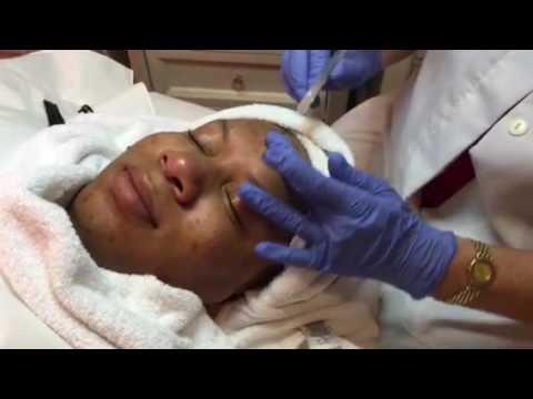 Hyperpigmentation Treatments for Black Women (South Florida)