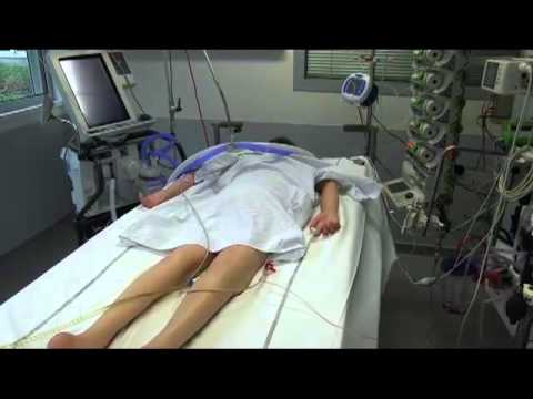 Prone Positioning in Severe Acute Respiratory Distress Syndrome