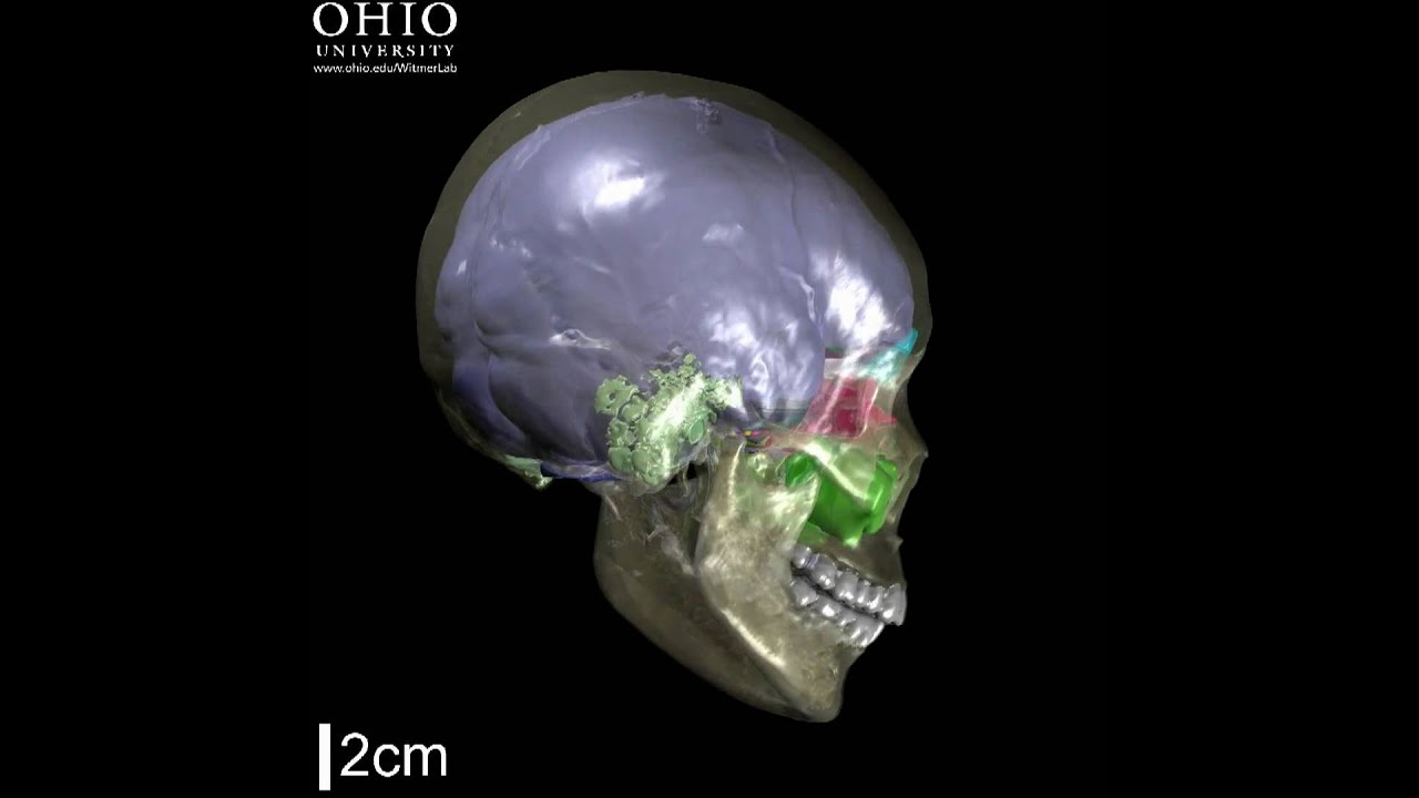 Human Skull With Brain Endocast Paranasal Sinuses Mastoid