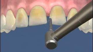 Препарирование зуба под виниры
