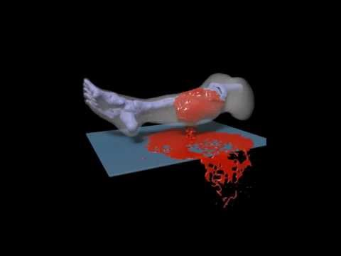 3-D video simulates severe bleeding for combat medics' training