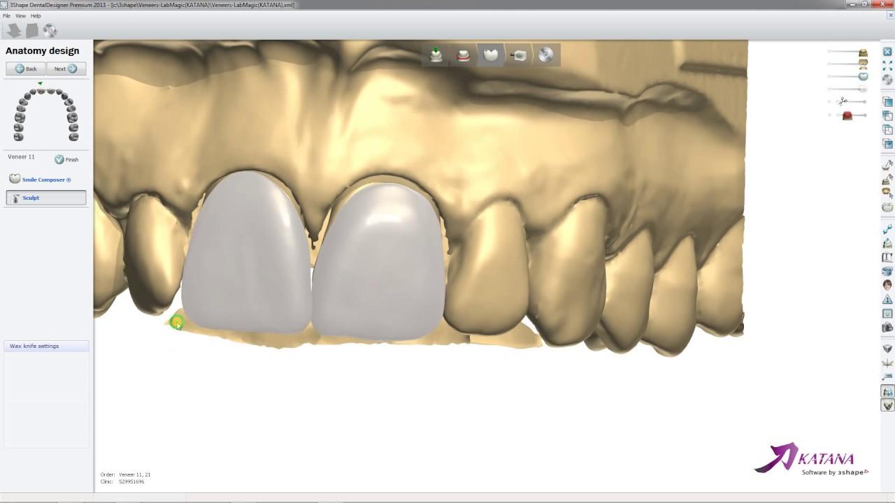 Veneer Design2 - LabMagic 3D CAD
