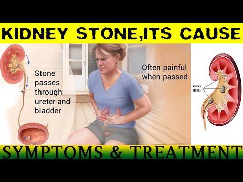 kidney stone -cause,symptoms,prevention