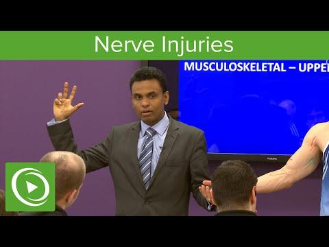 Nerve Injuries: Median Nerve – MRCS | Lecturio