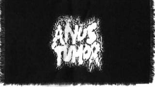 Anus Tumor - With Full Force Into Her Anus