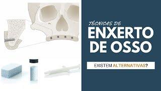 2. Tipos de Enxerto de Osso e Alternativas ao Enxerto (TÉCNICAS SEM ENXERTO ÓSSEO)