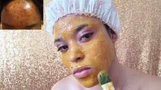 Solution efficace contre les masques de grossesse, les boutons d'acnés, les taches du visage