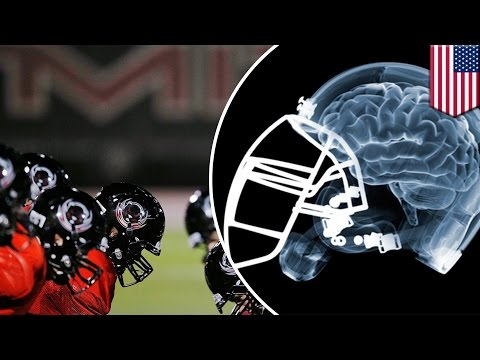 NFL brain damage: League acknowledges link between CTE and football-related head injuries