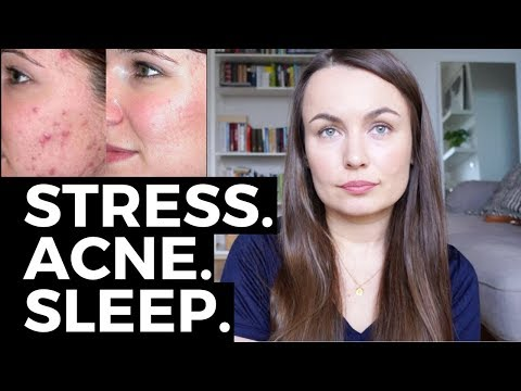 hqdefault - Sleep Disorders And Acne