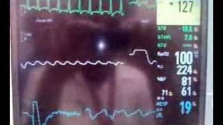VT Cardioversion