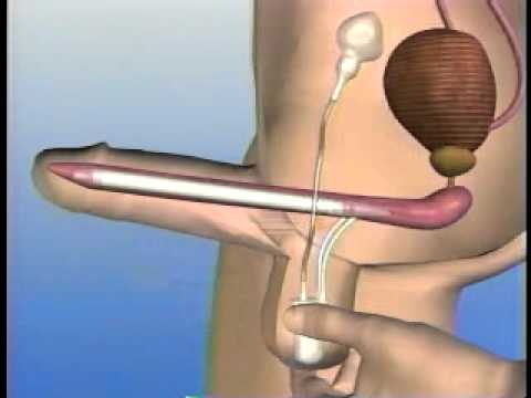 protesis peneana