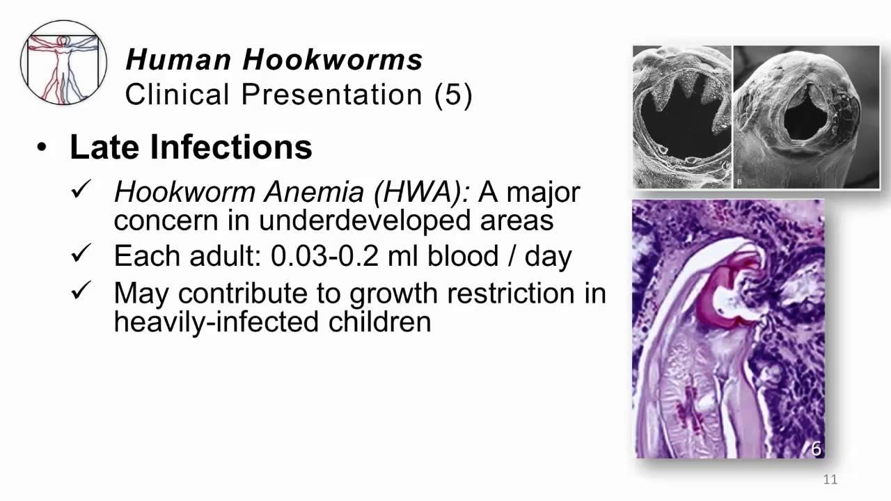 hookworm helminth