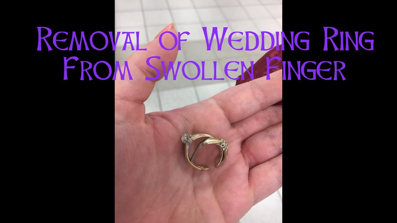 Wedding Ring Removal From Swollen Finger