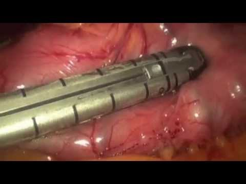 Lap Sleeve Gastrectomy by Dr Will Braun 2013