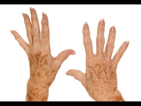 how-to-remove-age-spots-on-your-hands---remove-brown-spots-on-skin-tips