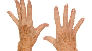 How to Remove Age Spots on Your Hands - Remove Dark Spots, From Anywhere In Your Body Quick