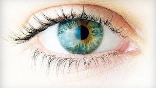 My Custom Wavefront Lasik Eye Surgery Experience