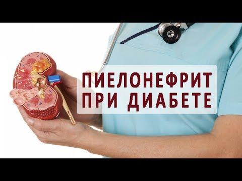 Пиелонефрит при сахарном диабете