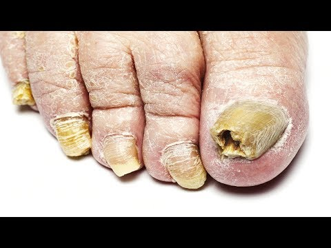 Toenail Fungus Treatment: How To Stop Toenail Fungus Permanently