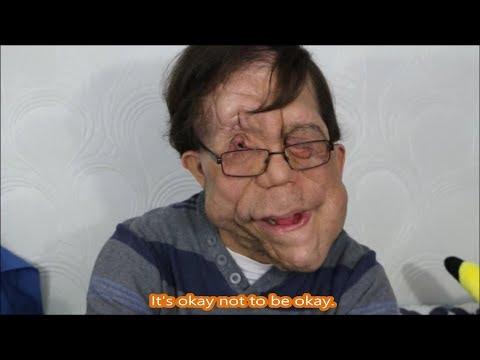 Living with a Facial Deformity (Neurofibromatosis)