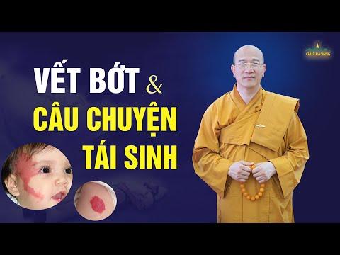 Vết bớt và những câu chuyện kì bí về tái sinh luân hồi là có thật? | Thầy Thích Trúc Thái Minh