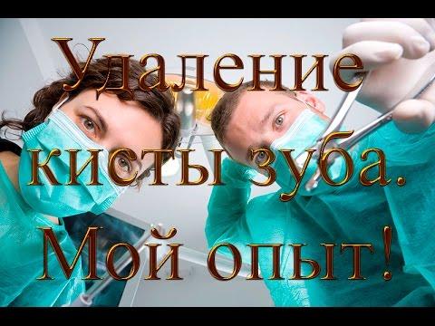 Как удалить кисту зуба не удаляя зуб