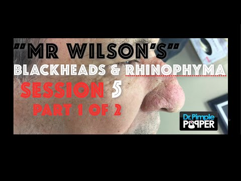 Pimple Heaven 421 Session 5 Part 1 Of 2 Mr Wilson S Blackhead Extractions Rhinophyma