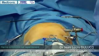 Hernie ombilicale par laparoscopie Dr JL Dulucq