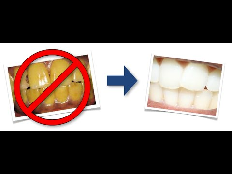 Gelbe Zähne wieder weiß bekommen - YouTube